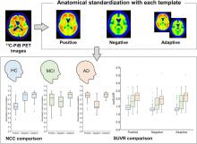 Improved Accuracy of Amyloid PET Quantification with Adaptive Template–Based Anatomic Standardization