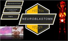 <sup>68</sup>Ga-DOTATATE PET/CT for Neuroblastoma Staging: Utility for Clinical Use