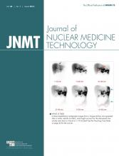 Journal of Nuclear Medicine Technology: 44 (1)