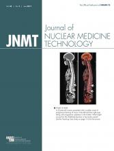 Journal of Nuclear Medicine Technology: 45 (2)